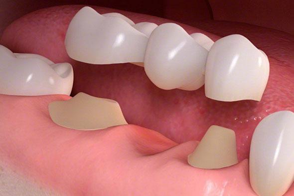 dental bridges in Adelaide
