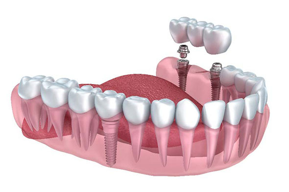dental implants in Adelaide