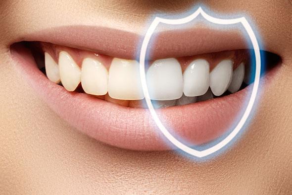 preventative dentistry in Adelaide