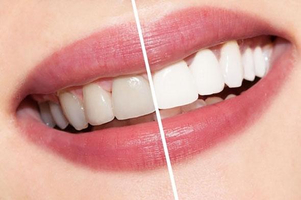 teeth whitening in Adelaide