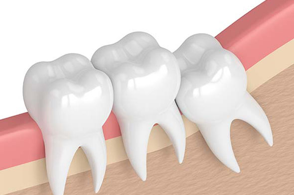 wisdom teeth removal in Adelaide